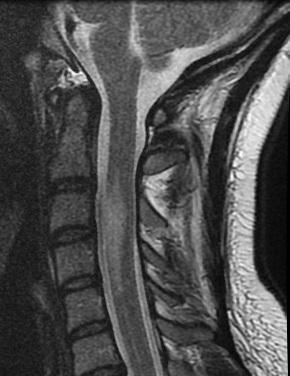 infarto de la medula espinal